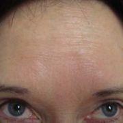 Dysport_forehead_1_before.jpg