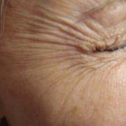 Botox_crows_feet_3_before.jpg