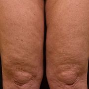 Cellulite_2_six_months_after_thermage.jpg