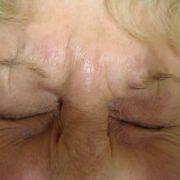 Botox_glabella_2_before.jpg