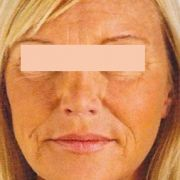 facelift-Natural-lift-2-before.jpg