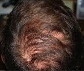 alopecia_2_post.jpeg