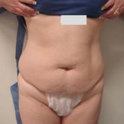 Argera_lipo_2a_before_lipo-abdominoplasty.jpg