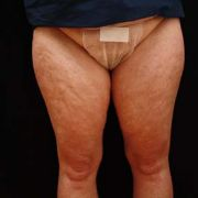 Argera_liposuction_inner_outer_thighs_9a_before.jpg
