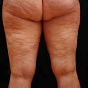 Argera_liposuction_inner_outer_thighs_9b_before.jpg