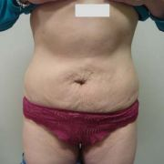 Argera_lipo_2a_post_lipo-abdominoplasty.jpg
