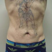 Argera_liposuction_abdomen_hips_5a_post.jpg