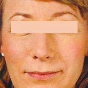 facelift-Natural-lift-1-post.jpg