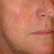 Dermasweep_microdermabrasion_1_before.JPG