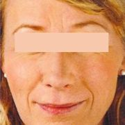 facelift-Natural-lift-1-before.jpg