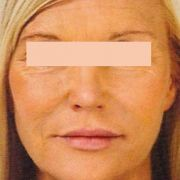 facelift-Natural-lift-2-post.jpg